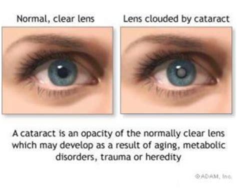 Meaning Of Blindness Blog Kansas City Eye Clinic