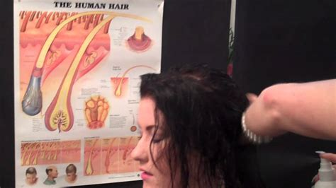 youtube female pattern baldness hair loss treatments at home female pattern thinning part