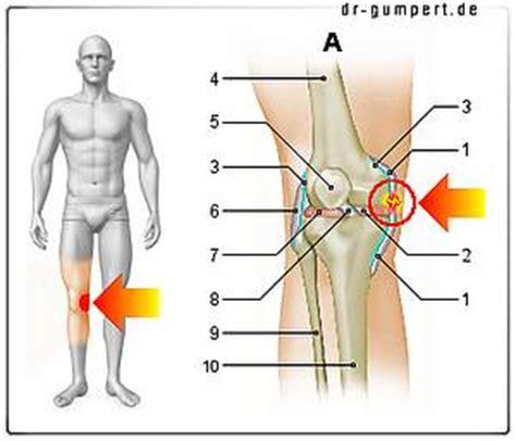 innerer meniskus innenbandriss am knie wie gef 228 hrlich ist das