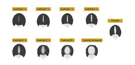 how male pattern baldness works female pattern baldness west bond best hair transplant