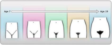 pubic hair comparisons in women puberty pubertyandstuff com