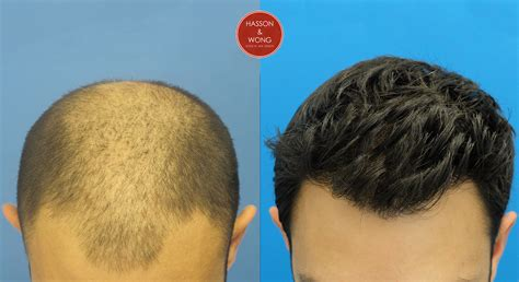 fut hong kong hair transplant hair transplant pictures 8364 grafts hasson wong