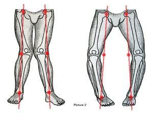 Why are valgus (knock-kneed) individuals more prone to kneecap pain ... Q Angle Genu Valgum