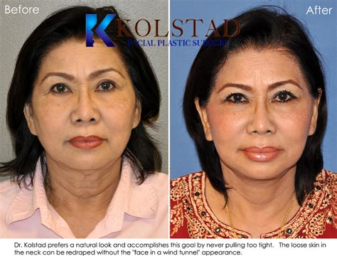 hairstyles that cover face lift scars how to hide forehead lift scars hairstylegalleries com