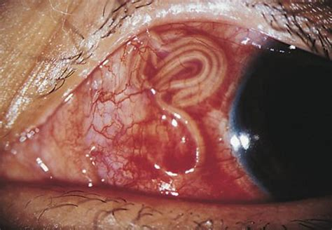 So this is what a parasite looks like in your eye. : WTF