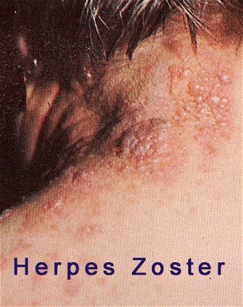 sintomi herpes zoster interno cura naturale herpes zoster herpes labialis herpes