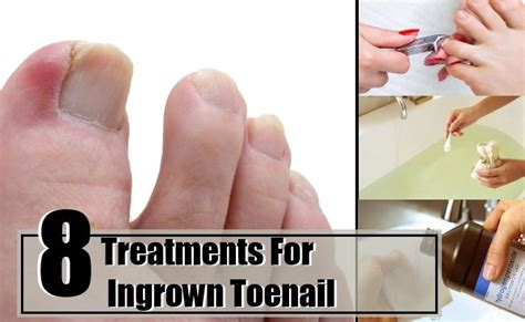 8 outstanding home treatments for ingrown toenail how to