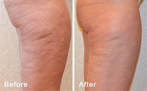 hair vegine pic bodyfx effective non surgical cellulite removal utah