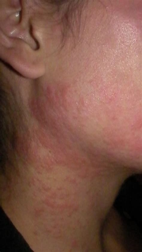 rash on neck rash on neck pictures to pin on pinsdaddy