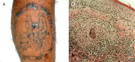 tattoo granuloma pictures granulomatous tattoo reaction in a young man the lancet