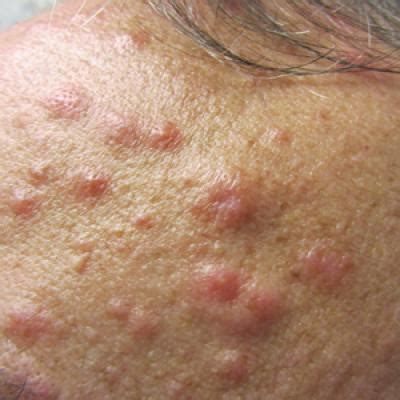 eosinophilic pustular folliculitis  underlying mantle