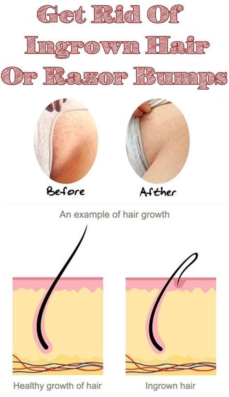 dealing with razor bumps or ingrown hair rewardme best 25 ingrown hair remedies ideas on pinterest