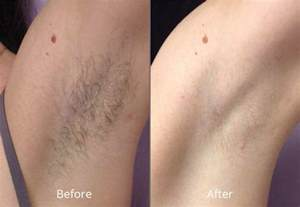 hair removal pictures laser hair removal at chesapeake medspa in virginia