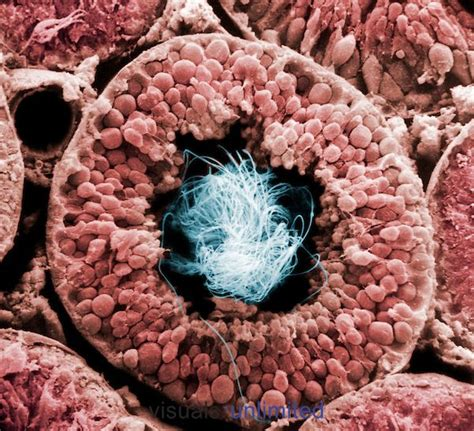bacteriology section 17 best ideas about cross section on pinterest tree