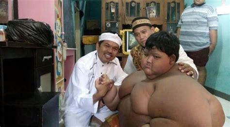 Timbangan Berat Badan Bandung berat badan bocah arya permana turun jadi 188 kg regional liputan6