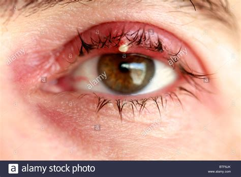 eye stye eye stye sty or hordeolum stock photo royalty free image 32296619 alamy