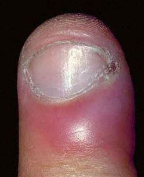 swollen nail bed swollen nail bed 28 images my subungual hematoma