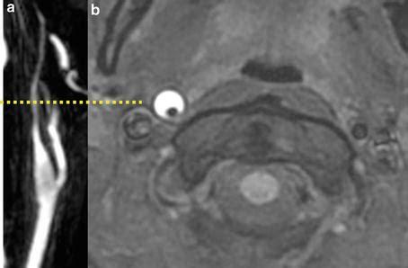 carotid artery dissection radiology key