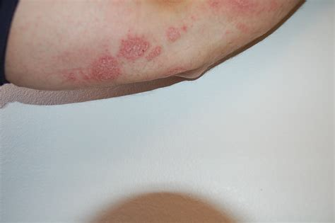 has itchy skin bumpy itchy skin on elbows breeds picture