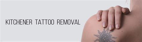 Laser Hair Removal Waterloo Kitchener by About Onyx Onyx Urgent Care