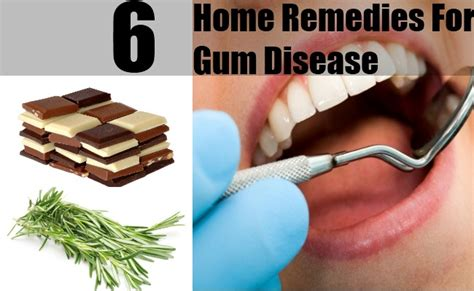 6 easy gum disease remedies at home treatments