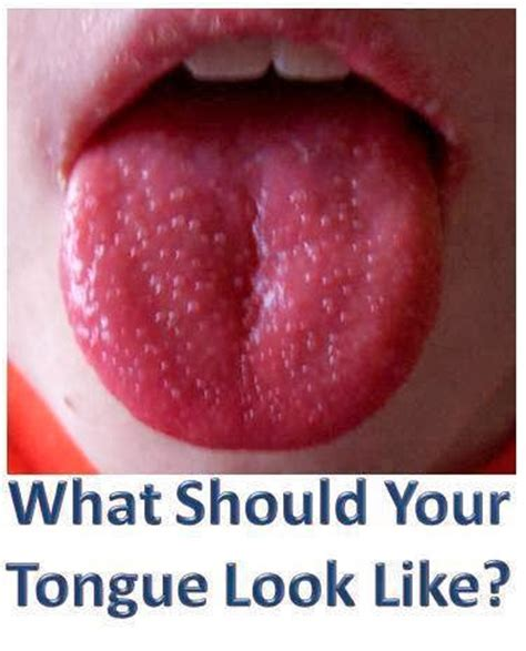 what color should your tongue be daily health wellness knowledge what should your tongue