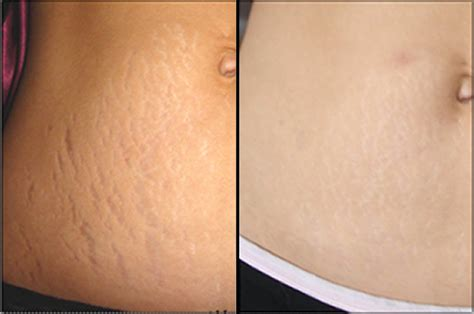 Stretch Marks by How To Get Rid Of Stretch Marks Fast Cure For Sure