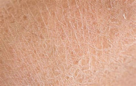 Eyeshadow Kering 8 perawatan alami mengatasi kulit kering bersisik hello