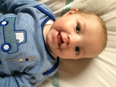 s new smile a baby with cleft lip and palate books cleft lip palate association