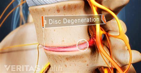 lumbar degenerative disc disease overview