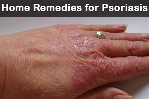 15 diy home remedies for psoriasis