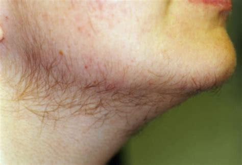 excess pubic hair hirsutism having excess body hair is an embarrassing probelm