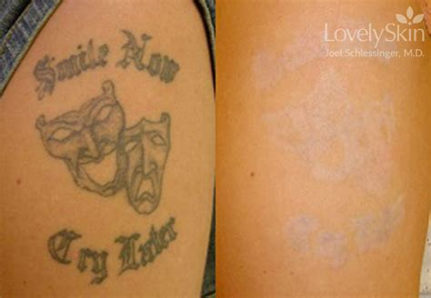 laser tattoo removal modesto ca removal before after skin specialists p c