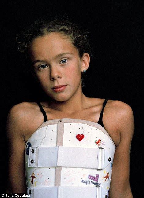 brave girl documents intense treatment for scoliosis that began aged 9 brave girl documents intense treatment for scoliosis that