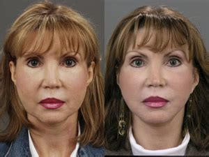 Ill Plastic Surgery Hollyscoop by Illinois Cosmetic Plastic Surgery