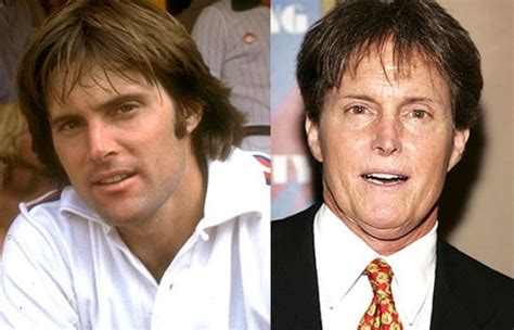 whats happened to bruce jenner 78 best images about plastic surgery good bad on pinterest