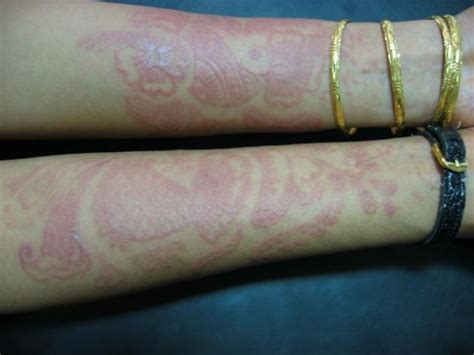 henna tattoo allergic reaction treatment pin by gerald on science studies