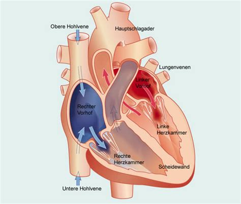 Zu Feucht Ursache by Herzbeutelentz 252 Ndung Ursachen Und Risikofaktoren