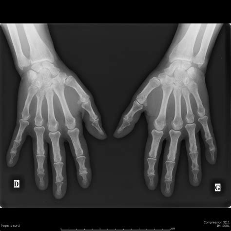 Cabinet De Radiologie Lyon 7 by Cabinet Radiologie Lyon 7 Id 233 Es D Images 224 La Maison