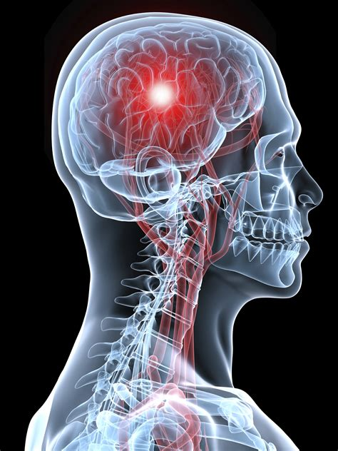 a stroke health tips stroke treatments toxic chemicals in receipts and new and