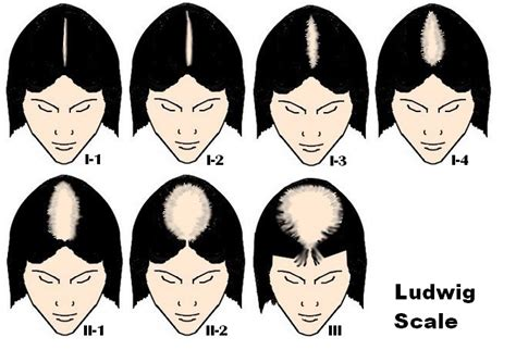 ludwig scale female androgenetic alopecia androgenetic alopecia the current theory has problems