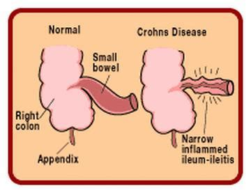 crohn s the other c word crohn s disease court reporting and custody battles books crohn s disease we dish nutrition