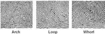 pattern types of fingerprints headlines on human hands do you have unusual fingerprints