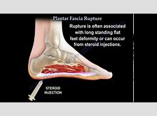 Plantar Fascia Rupture - Everything You Need To Know - Dr ... Foot Arch Muscles