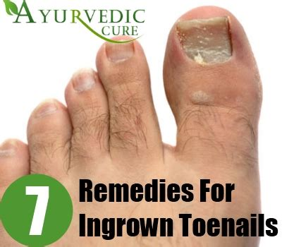 7 ingrown toenails home remedies treatments