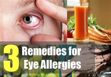 3 remedies for eye allergies how to deal with