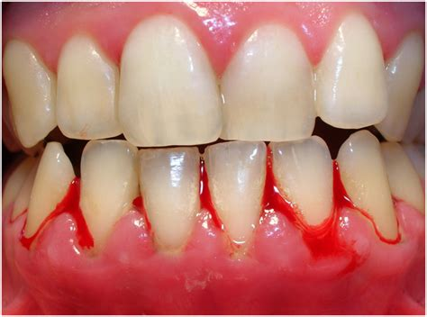 gingivitis treatment gingivitis symptoms causes treatment cure prevention diseases pictures