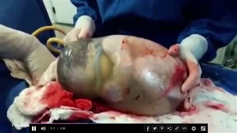 c section baby in sac video of baby born inside amniotic sac goes viral