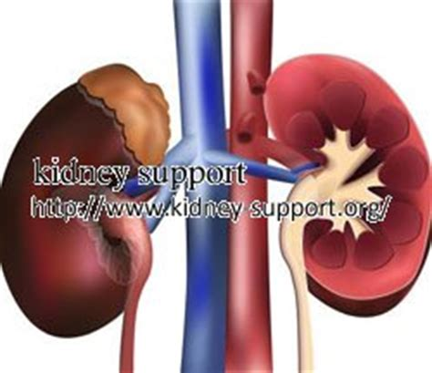 kidney failure expectancy expectancy once dialysis begins kidney disease and dialysis rachael edwards