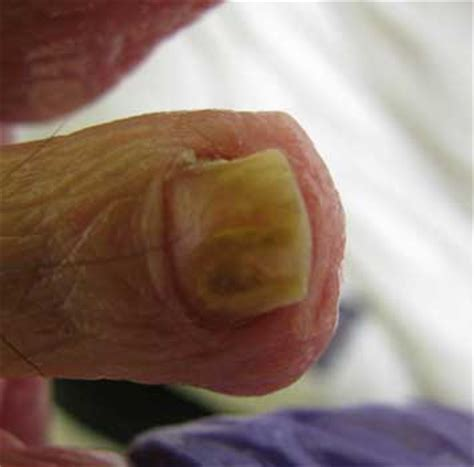 nail bed infection nail bed fungal infection treatment